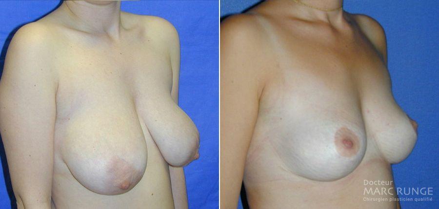 Réduction mammaire, photos par Dr Runge, chirurgien esthétique Paris et Beauvais (Oise)