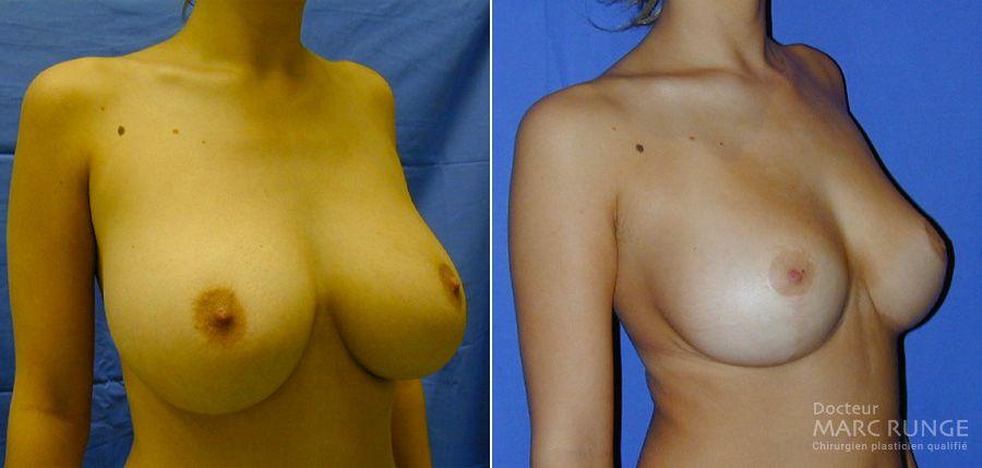 Photos avant et après d'une réduction mammaire - Dr Runge, Paris et Beauvais (Oise)