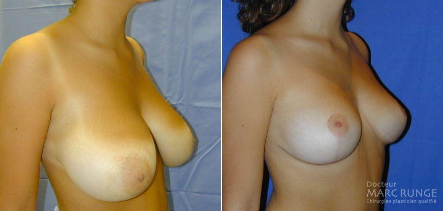 Dr Runge, photos avant et après la réduction mammaire - Paris et Beauvais (Oise)