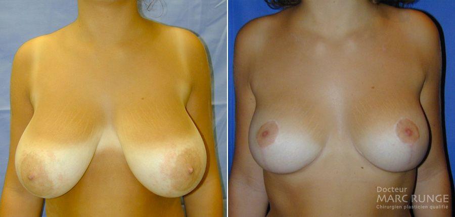 Photos du résultat de la réduction mammaire par Dr Runge, chirurgien esthétique Paris, photos avant/après
