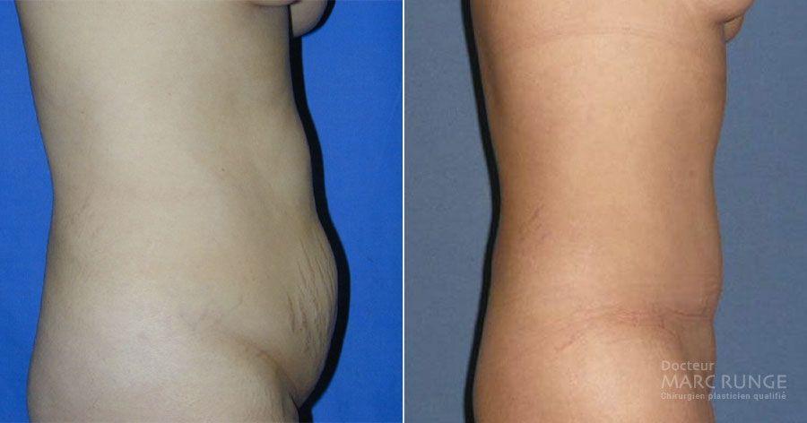 La plastie abdominale photos avant et après par Dr Runge, chirurgien esthétique à Paris et Beauvais (Oise)
