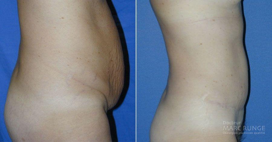 Abdominoplastie photos avant et après par Dr Runge, spécialiste de la chirurgie esthétique à Paris et Beauvais (Oise)