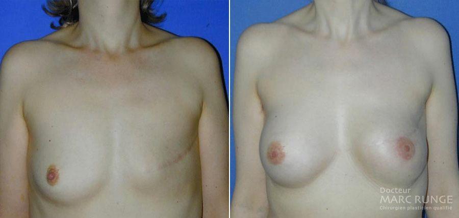 Photos reconstruction mammaire avant et après par Dr Runge, chirurgien esthétique, Paris et Beauvais (Oise)