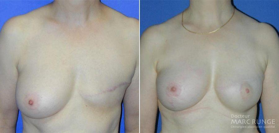 Photos avant et après d'une reconstruction mammaire à Paris par Dr Runge, chirurgien esthétique