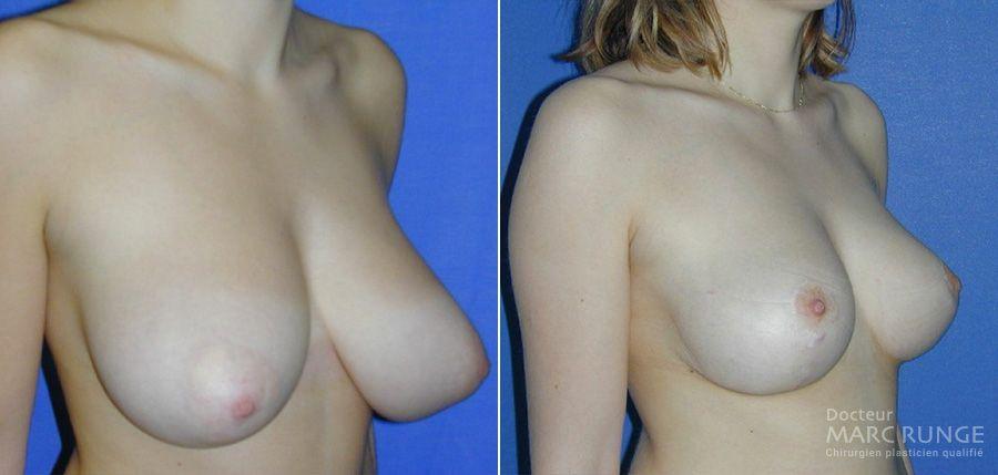 La réduction mammaire, photos - Dr Runge, chirurgien esthétique Paris et Beauvais (Oise)