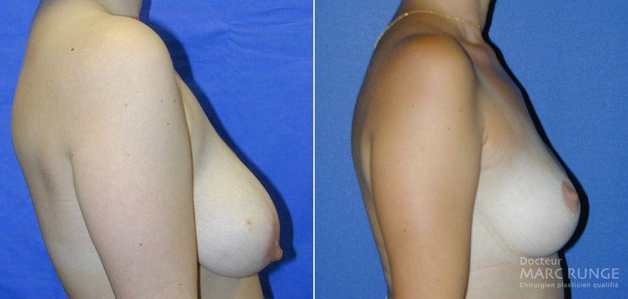 Photos réduction mammaire avant et après par Dr Runge, chirurgien esthétique Paris et Beauvais (Oise)