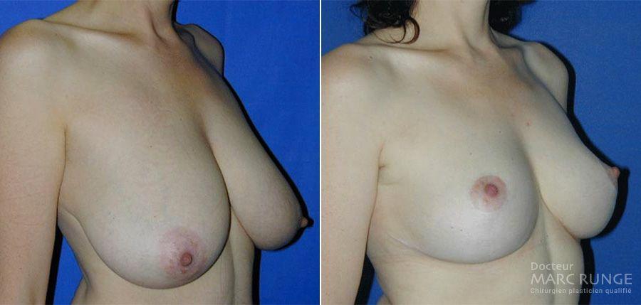 Réduction mammaire : photos avant et après par Dr Runge, chirurgien esthétique à Paris et Beauvais (Oise)