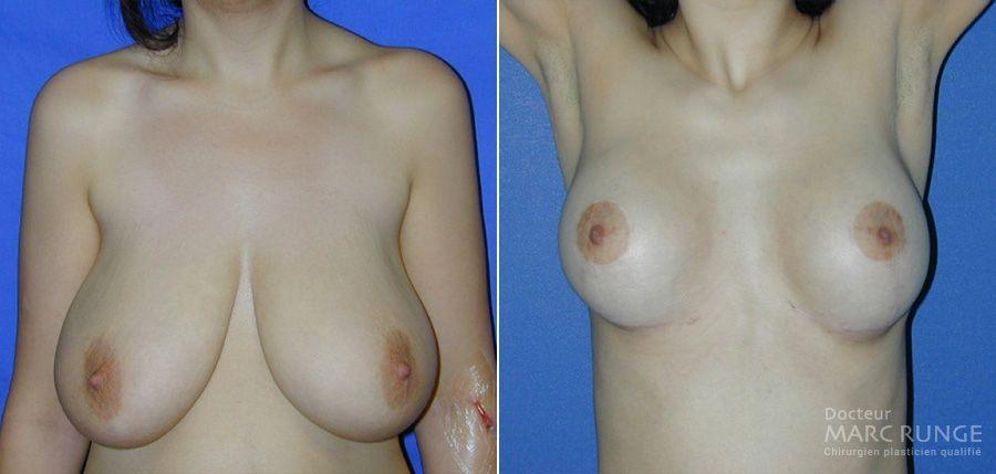 photos avant et après de la réduction mammaire à Paris par Dr Runge, chirurgien esthétique et Beauvais (Oise)