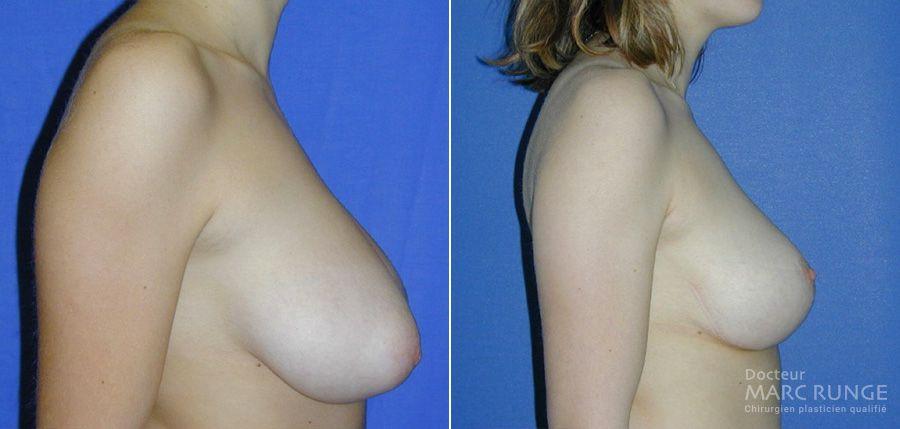 Le résultat de la réduction mammaire par Dr Runge, chirurgien esthétique à Paris et Beauvais (Oise)
