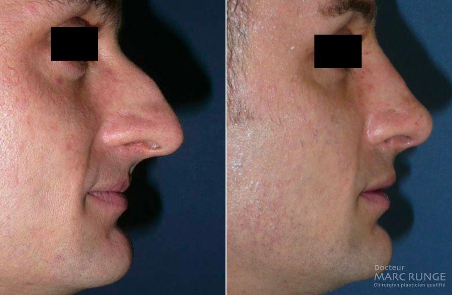Chirurgie esthétique du nez, photos avant/après - Dr Runge - Chirurgien esthétique à Paris et Beauvais