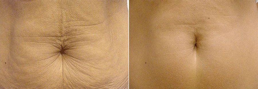 Photo thermage avant et après : une technique pour traiter le relâchement cutané et la cellulite par la chaleur - Dr Runge,Paris et Beauvais (Oise)