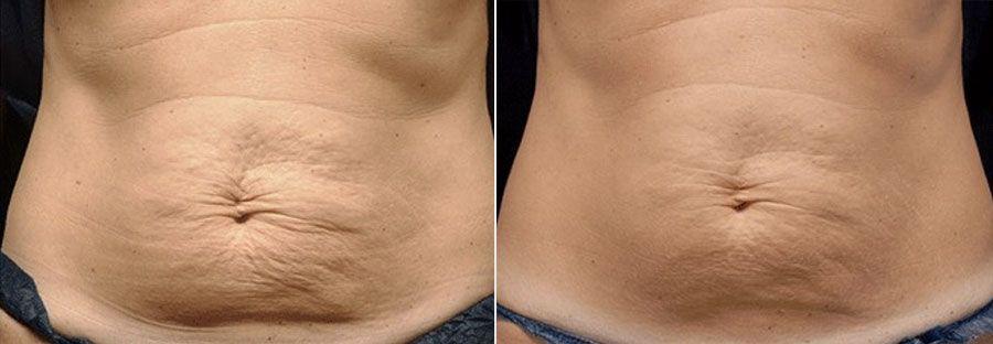 Photo avant et après le thermage, une technique pratiquée par Dr Runge pour traiter le relâchement cutané et la cellulite - Paris et Beauvais (Oise)