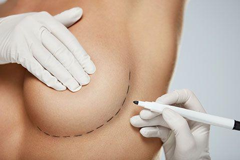 Tout savoir sur la réduction mamaire à Beauvais | Dr Runge
