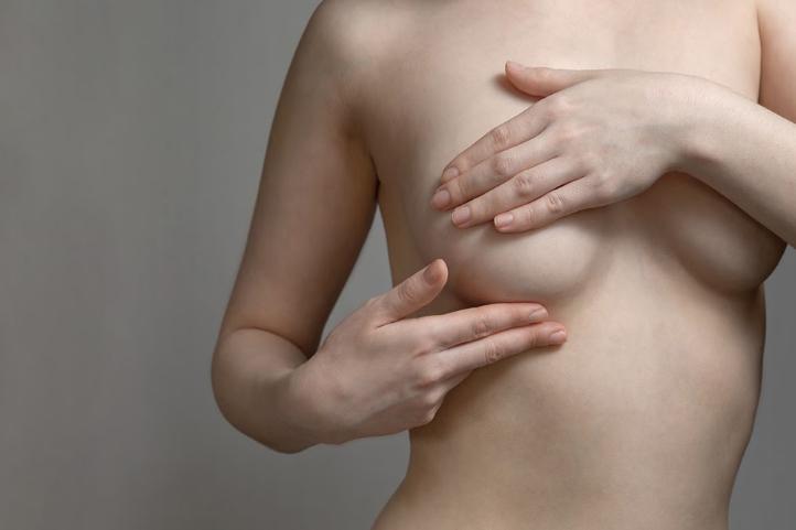 Remplacement des prothèses mammaires Dr Runge